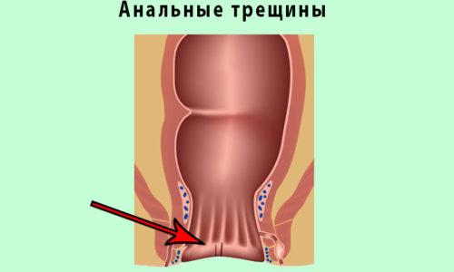 Частое осложнение хронического течения геморроя - возникновение анальных трещин