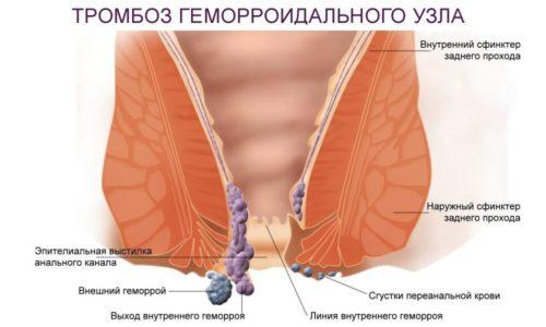 Тромбозом геморроидальных узлов называется патологическое состояние, характеризующееся формированием сгустка крови (тромба) в просвете сосудов в области прямой кишки