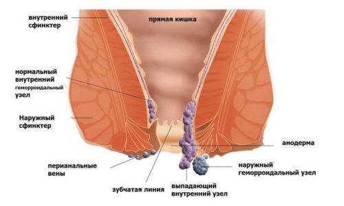 При неблагоприятных факторах узлы могут стремительно увеличиваться в размере, становясь причиной проявления яркой симптоматики геморроя