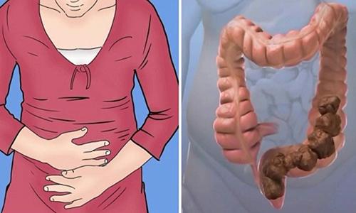 Запоры, вызванные неправильным питанием, являются причиной кровоточивости геморроя