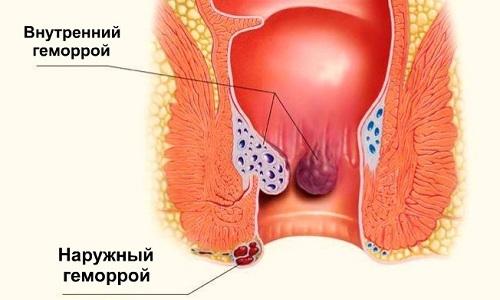 Наружный геморрой - болезнь, возникающая в результате нарушенного кровообращения в венах, расположенных в заднем проходе