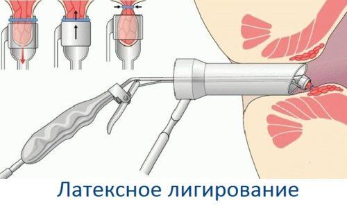 К наиболее популярным малоинвазивным методам лечения геморроя относят латексное лигирование