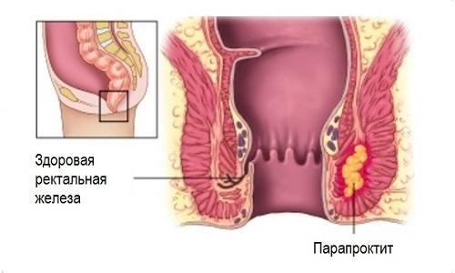 Без своевременного лечения геморрой может стать причиной развития параректального абсцесса